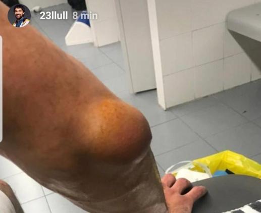 Codo Llull lesión Alba Berlín